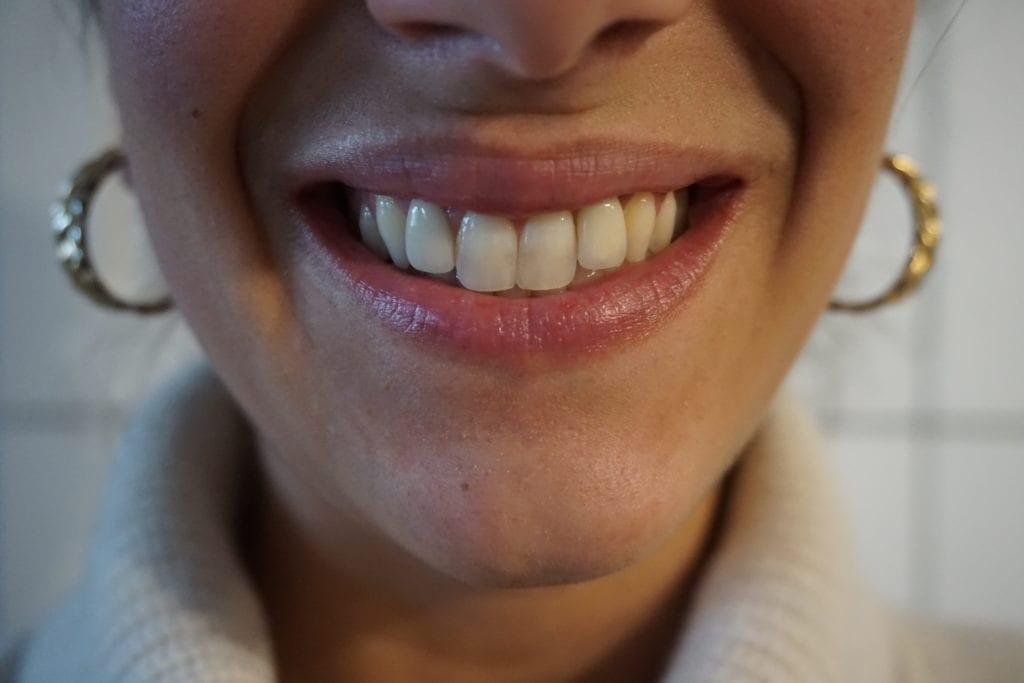 teeth whitening, teeth whitening for sensitive teeth, at home teeth whitening, smile brilliant review, at home teeth whitening giveaway