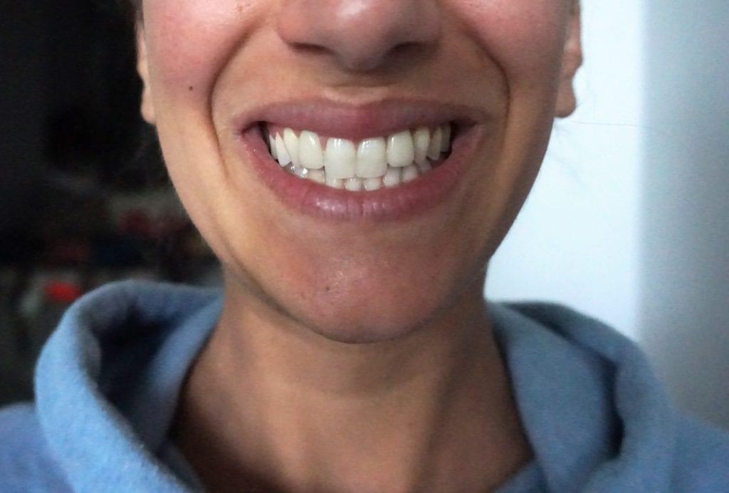 teeth whitening, sensitive teeth whitening, at home teeth whitening